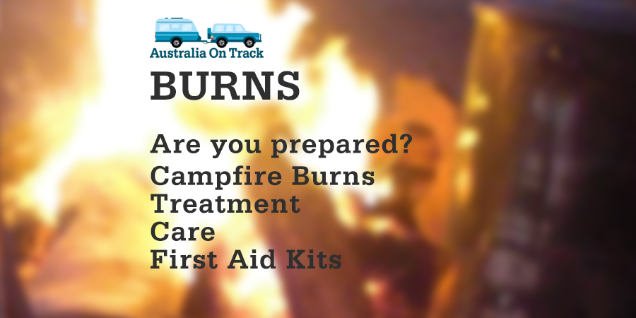 Burns … Are you prepared?